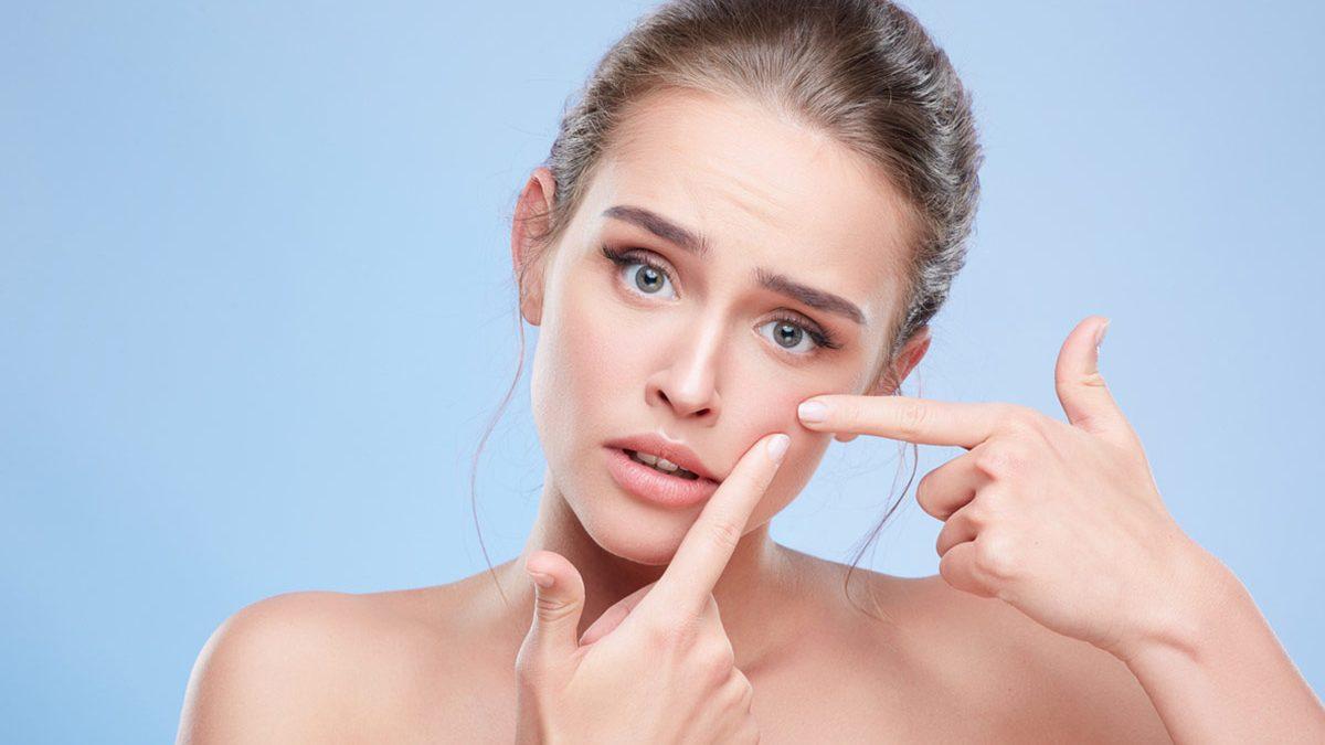 Foto de Adapaleno: como cuidar da pele com Adapaleno