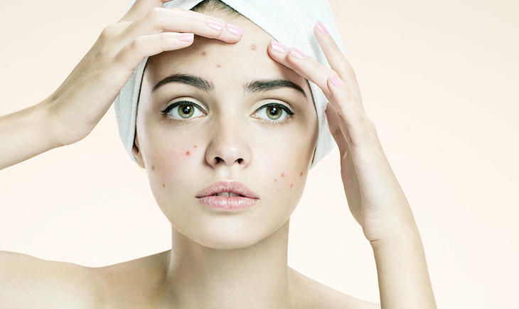 Foto de Fórmulas manipuladas para acne - top 5 fórmulas para tratar acnes