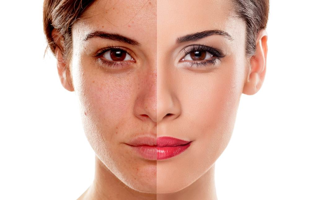 Foto de Como tirar as manchas do rosto com remédios manipulados?