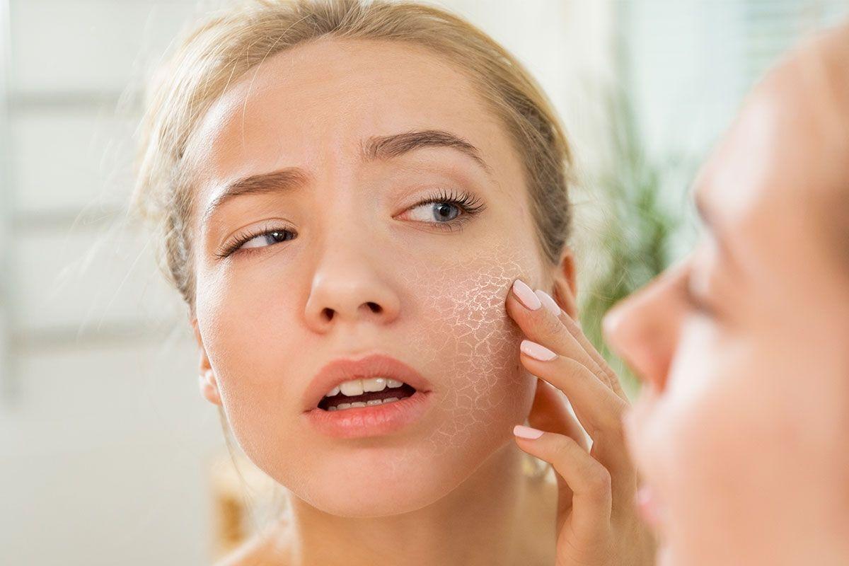 Foto de Produtos manipulados para evitar que a pele fique seca